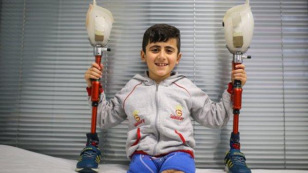 Suriyeli sakat çocuklar, protez bacaklarıyla koşacak